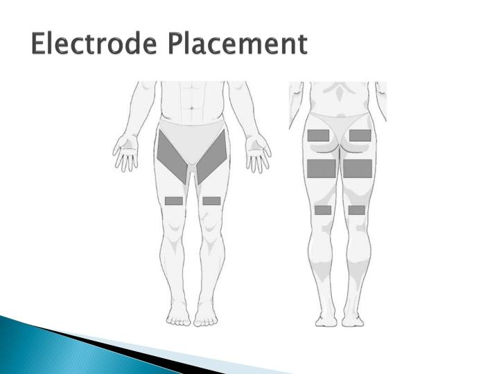 Electrode Placement