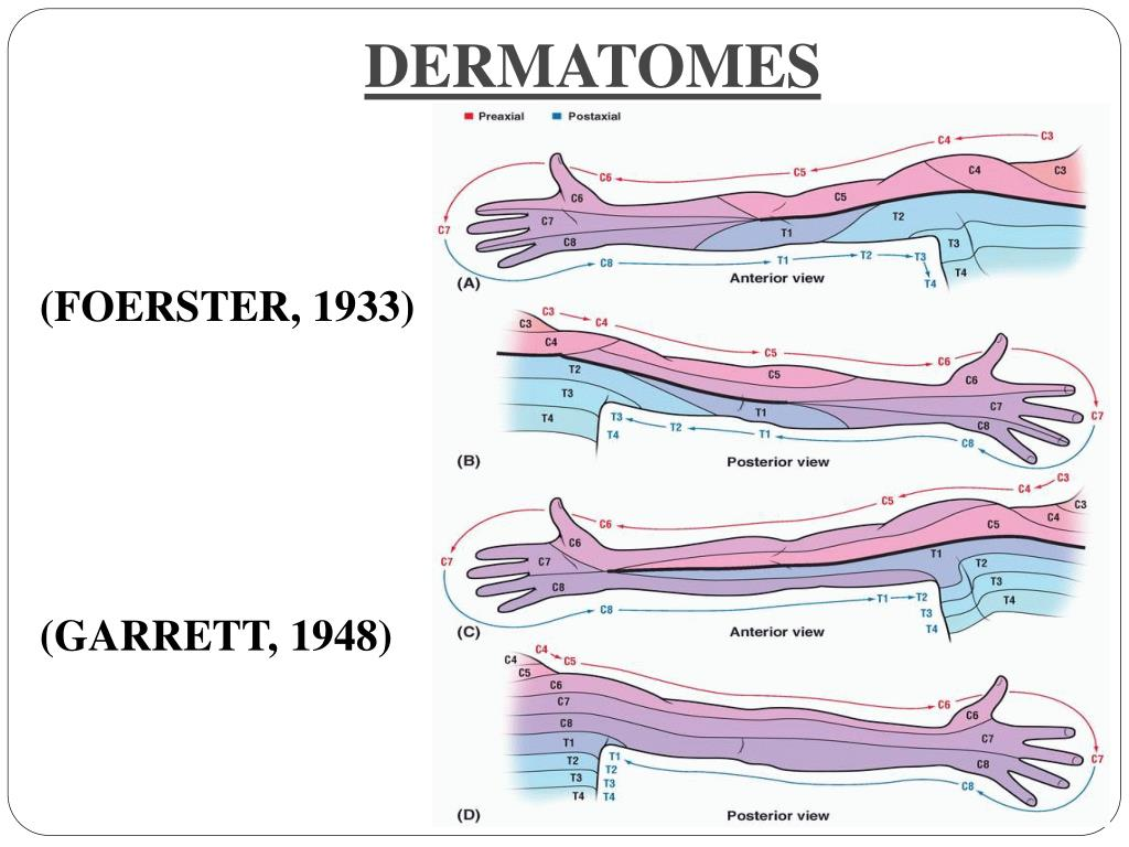 Ppt - Nerves Of Upper Limb  U0026 Their Lesions Powerpoint Presentation