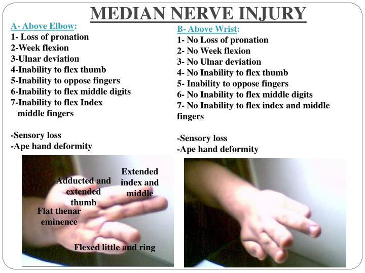 Ppt Nerves Of Upper Limb Their Lesions Powerpoint Presentation
