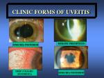 clinic forms of uveitis