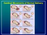 cardinal movements of normal delivery