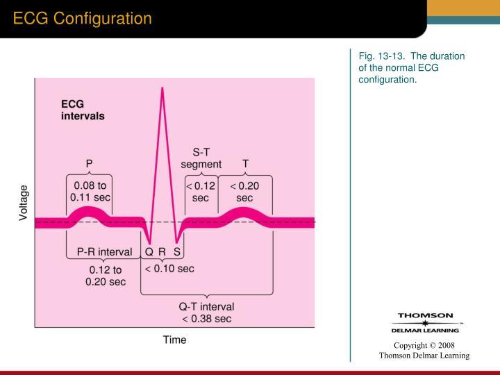 ECG Configuration