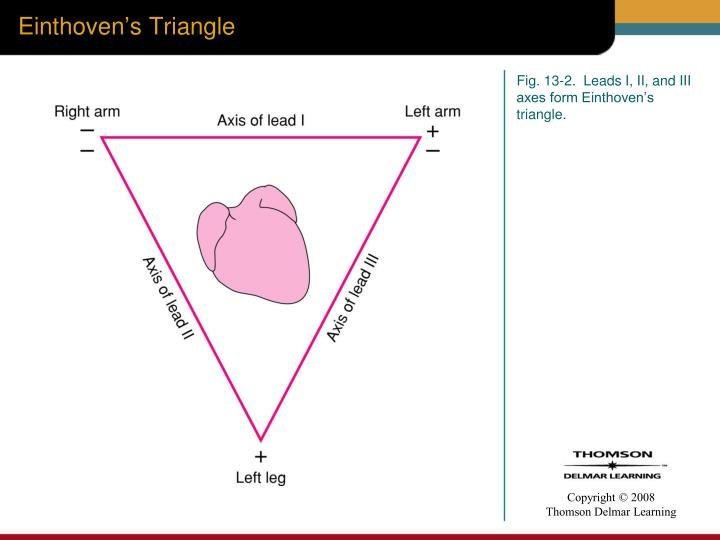Einthoven's Triangle