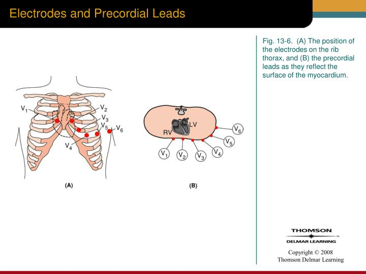 Electrodes and Precordial Leads