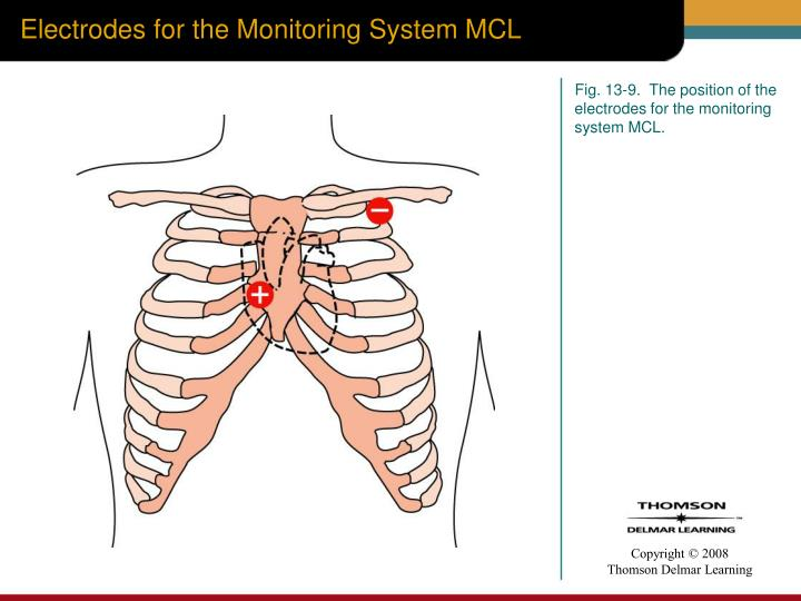 Electrodes for the Monitoring System MCL