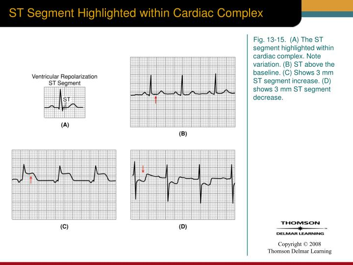 ST Segment Highlighted within Cardiac Complex