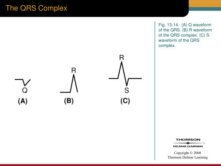 The QRS Complex