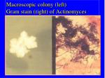 macroscopic colony left gram stain right of actinomyces
