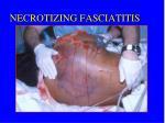necrotizing fasciatitis1
