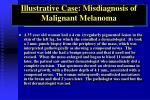 illustrative case misdiagnosis of malignant melanoma