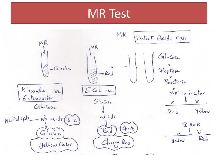 MR Test