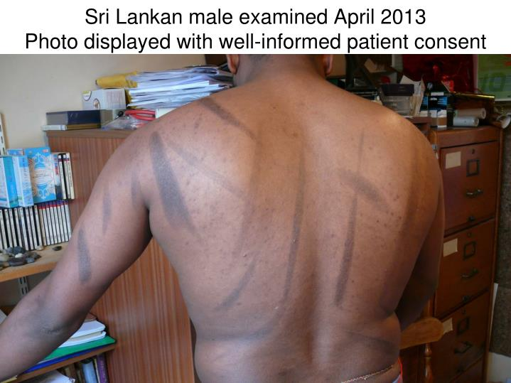 sri lankan male examined april 2013 photo displayed with well informed patient consent n.