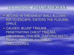 traumatic pneumothorax