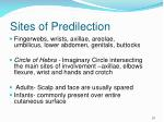 sites of predilection