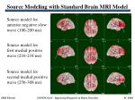 source modeling with standard brain mri model