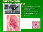 prevencion toxoplasmosis