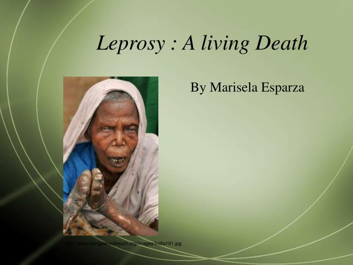 leprosy a living death n.