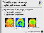classification of image registration methods