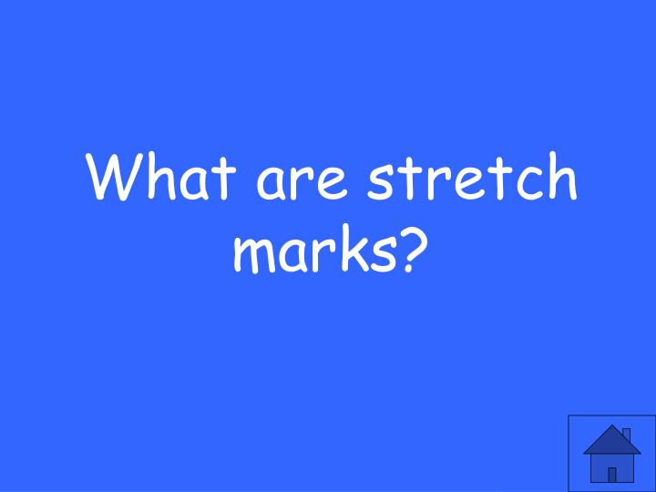 What are stretch marks?