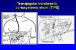 transjugular intrahepatic portasystemic shunt tips