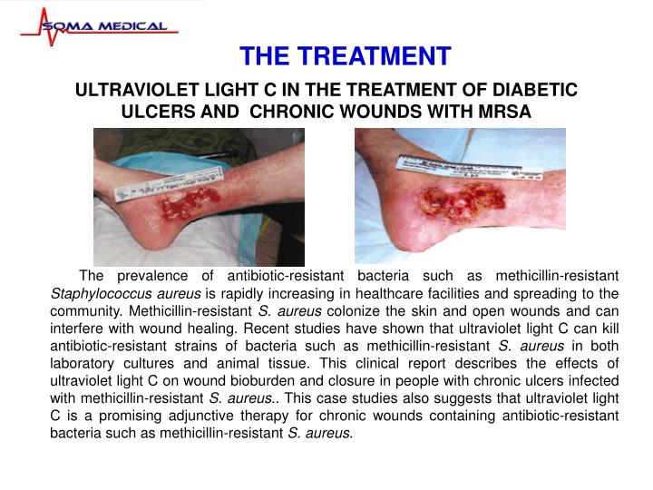 ultraviolet light c in the treatment of diabetic ulcers and chronic wounds with mrsa n.