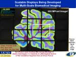 scalable displays being developed for multi scale biomedical imaging