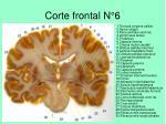corte frontal n 6
