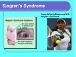 sjogren s syndrome