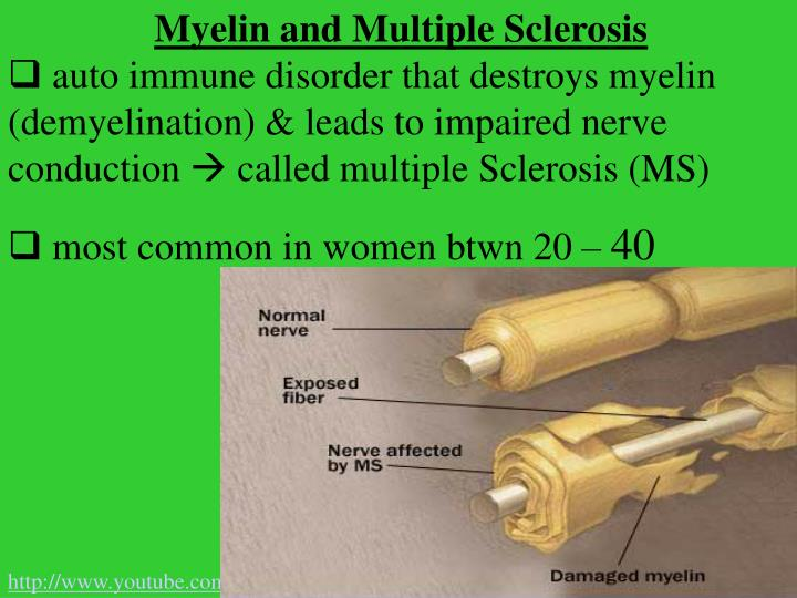 Myelin and Multiple Sclerosis