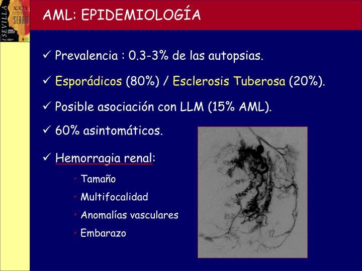 AML: EPIDEMIOLOGÍA