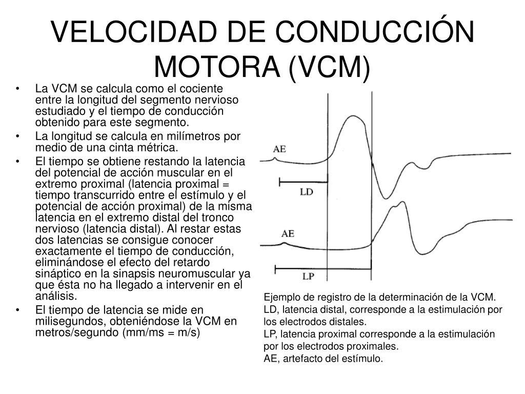 electromiograma miembros inferiores velocidad conduccion
