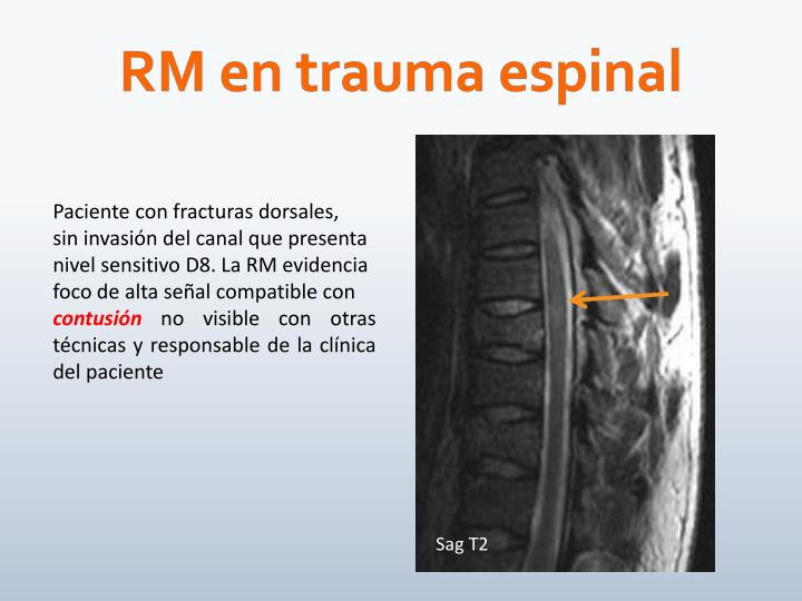RM en trauma espinal