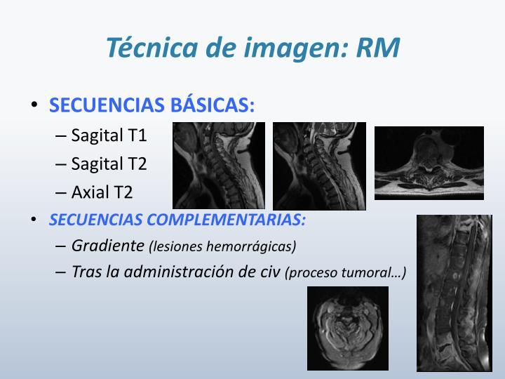 Técnica de imagen: RM