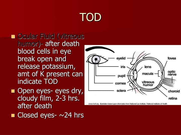 Ocular Fluid (vitreous humor)-