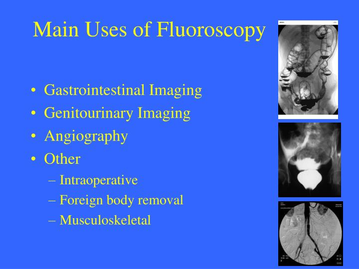 Main Uses of Fluoroscopy
