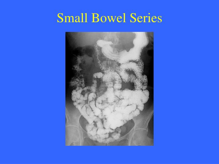 Small Bowel Series