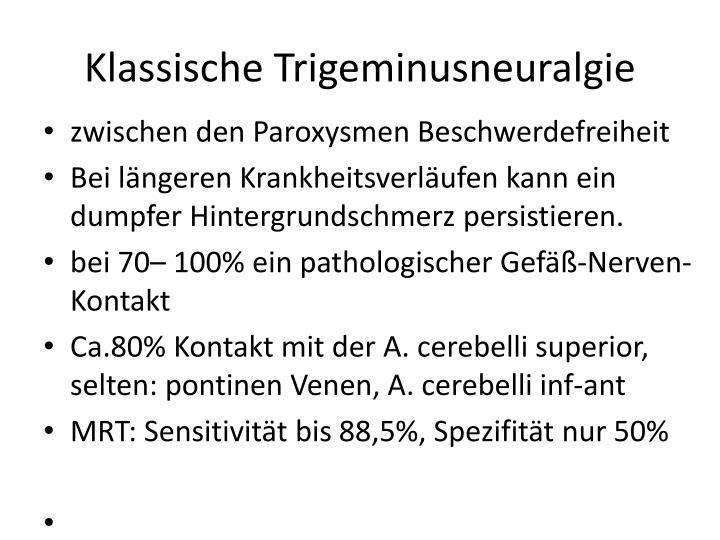 Klassische Trigeminusneuralgie