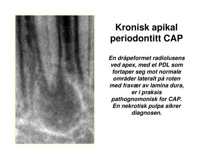 Kronisk apikal periodontitt CAP