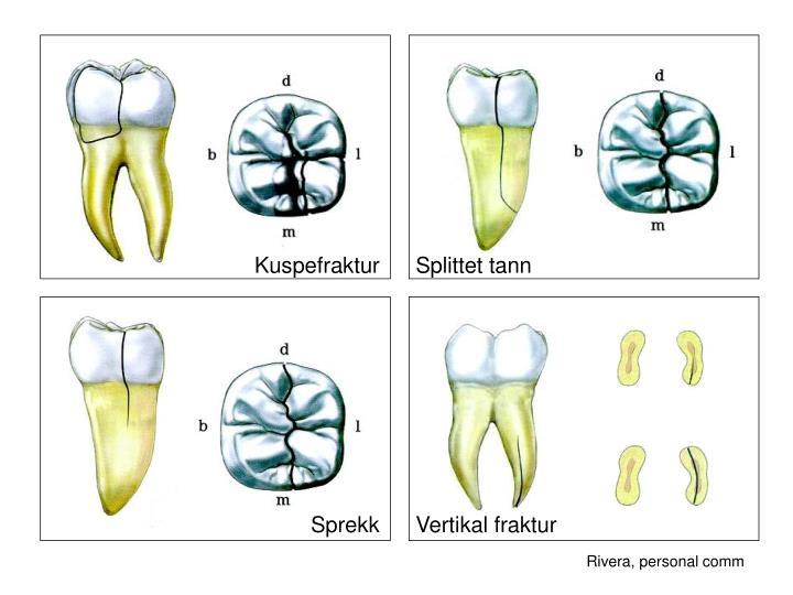 Kuspefraktur      Splittet tann