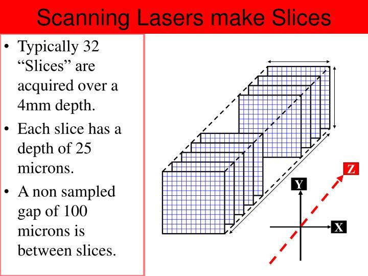 Scanning Lasers make Slices