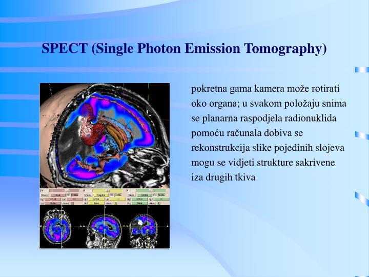 SPECT (Single Photon Emission Tomography)