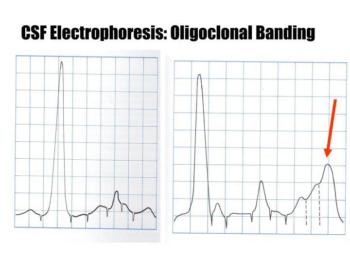 CSF Electrophoresis: Oligoclonal Banding