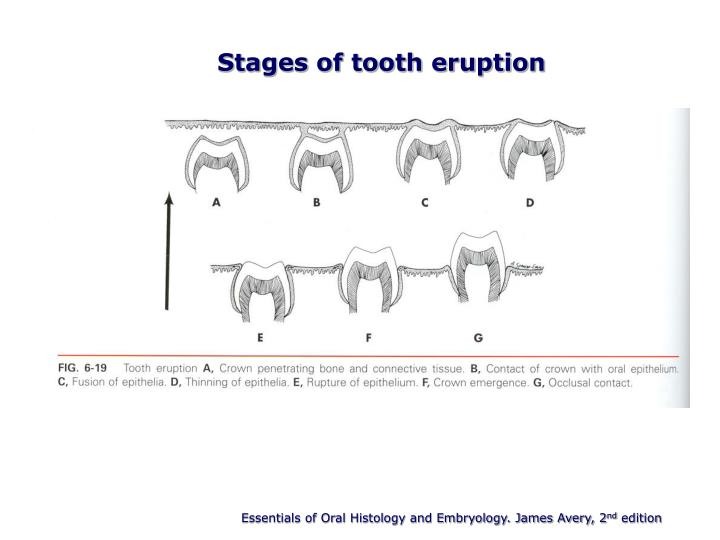 Stages of tooth eruption