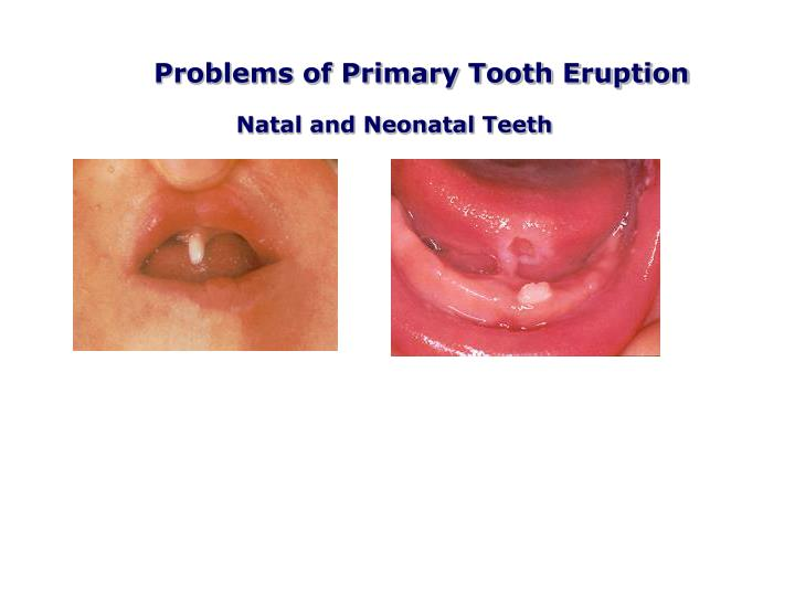 Problems of Primary Tooth Eruption