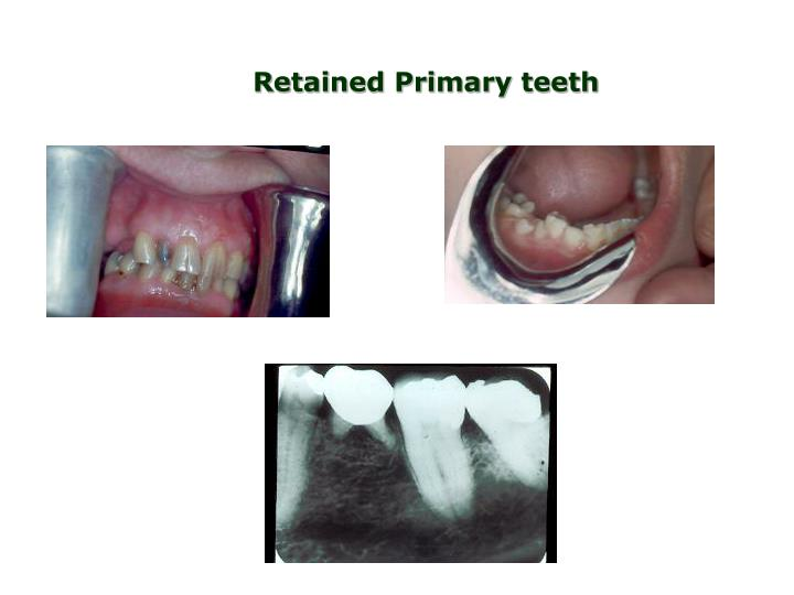 Retained Primary teeth