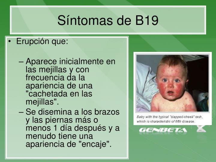 Síntomas de B19