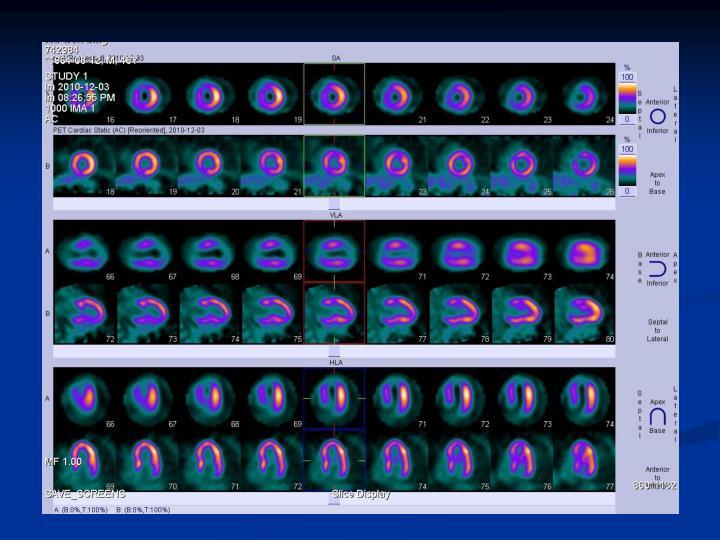 PPT - Myocardial Viability PowerPoint Presentation - ID