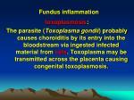 fundus inflammation1