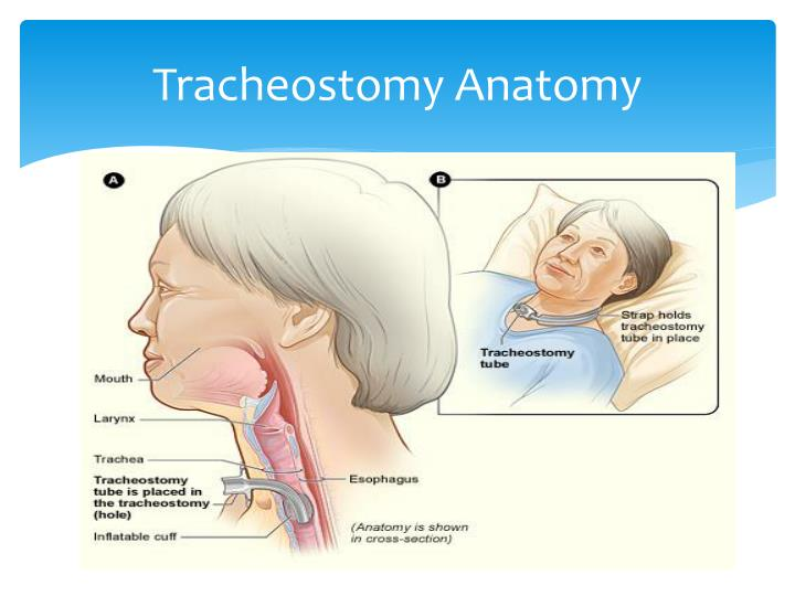 Ppt Tracheostomy Care Powerpoint Presentation Id5705059