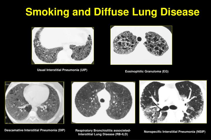 Smoking and Diffuse Lung Disease